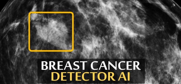DeepMind's New AI Helps Detecting Breast Cancer